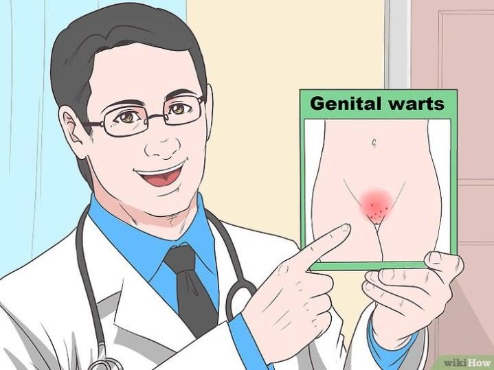 pengobatan kutil kelamin